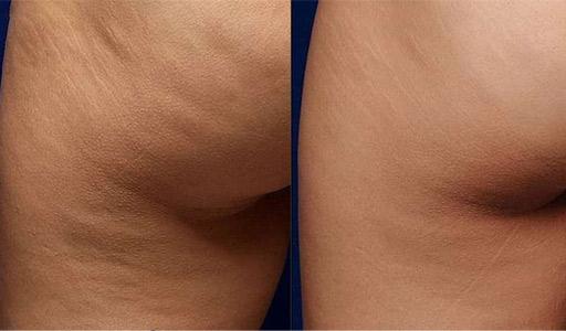 Лечение целлюлита и коррекция фигуры